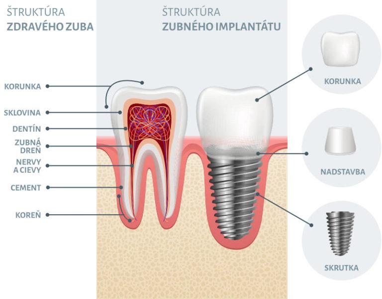 Prečo sú zubné implantáty tak výhodné?